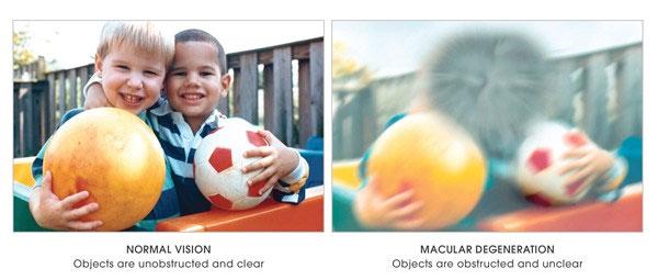 Normal Vision / Macular Degeneration